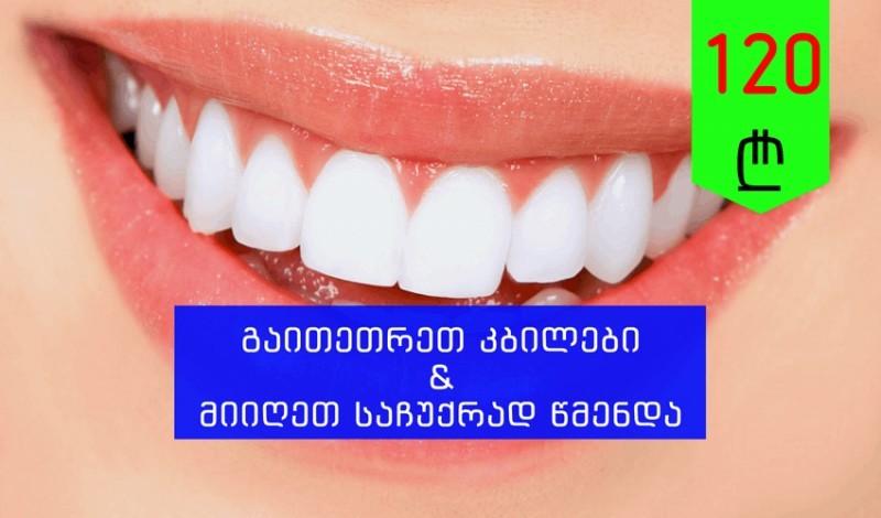 კბილების გათეთრება+წმენდა