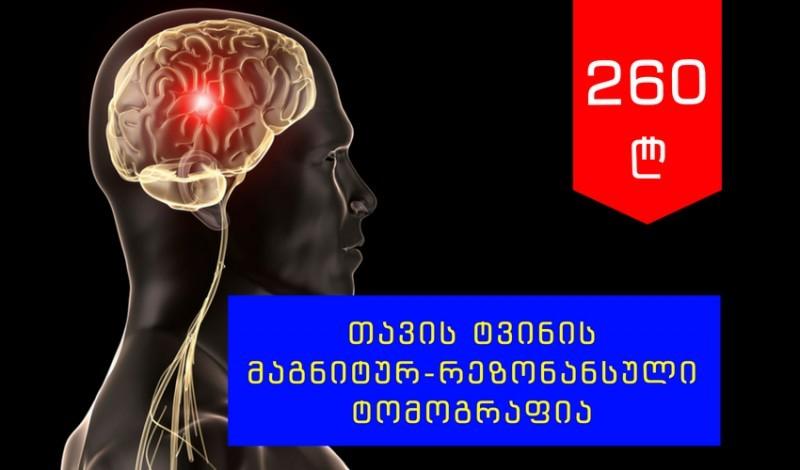 თავის ტვინის მაგნიტურ-რეზონანსული ტომოგრაფია