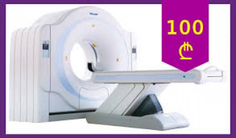 კომპიუტერული ტომოგრაფია ( CT ) 100 ლარად