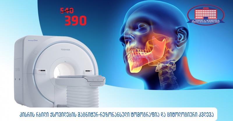 ყბა–სახის ქირურგის კონსულტაცია, კისრის რბილი ქსოვილების მაგნიტურ–რეზონანსული ტომოგრაფია და ციტოლოგიური კვლევა