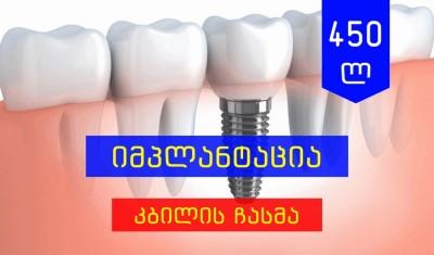 კბილის იმპლანტაცია