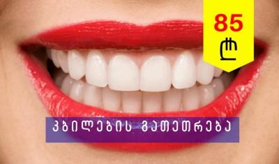 კბილების გათეთრება ზუმის აპარატით