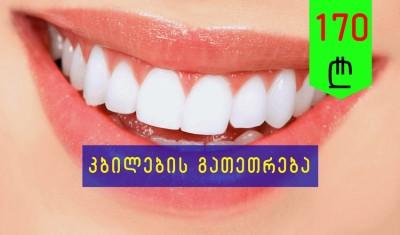 თეთრი კბილები