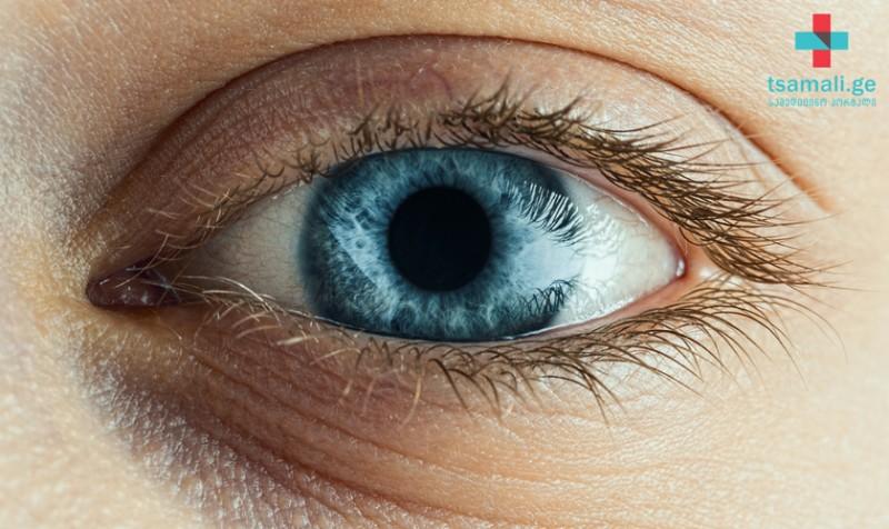 როგორ შევინარჩუნოთ თვალების ჯანმრთელობა - რა იწვევს ზაფხულის კონიუქტივიტს?