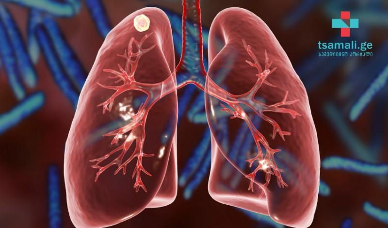 როგორ მოვიქცეთ ტუბერკულიოზით  დაავადებულ პაციენტთან ურთიერთობისას?