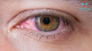 გლაუკომა - თვალის მულტიფაქტორული ქრონიკული დაავადება