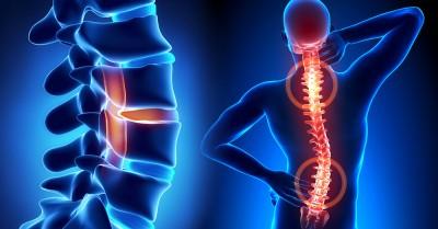 ოსტეოპოროზის პრევენცია და მკურნალობა შესაძლებელია