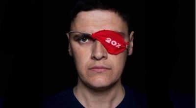 გმირი ექიმები, რომლებმაც აქციაზე დაშავებულებს მხედველობა შეუნარჩუნეს