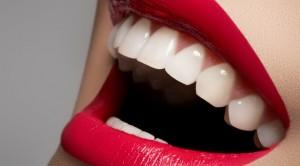 ყველაფერი, რაც უნდა ვიცოდეთ კბილების გათეთრებისთვის