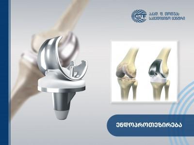 ენდოპროთეზირება - დაზიანებული მსხვილი და წვრილი სახსრის სრული ან ნაწილობრივი ჩანაცვლება