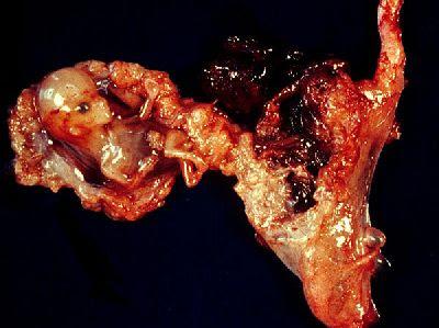 Prosztatagyulladás liz burbo. A női test reakciója a prosztatagyulladásra